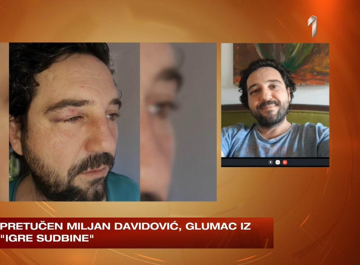 Miljan Davidović pretučen